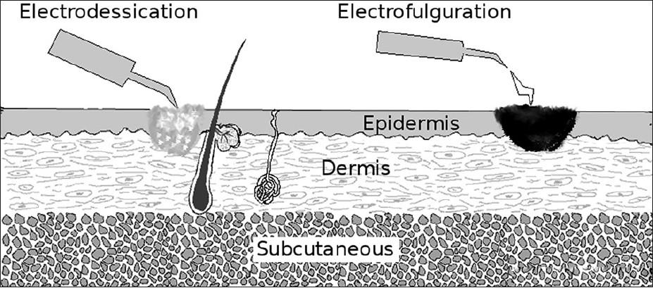 Electrofulguration