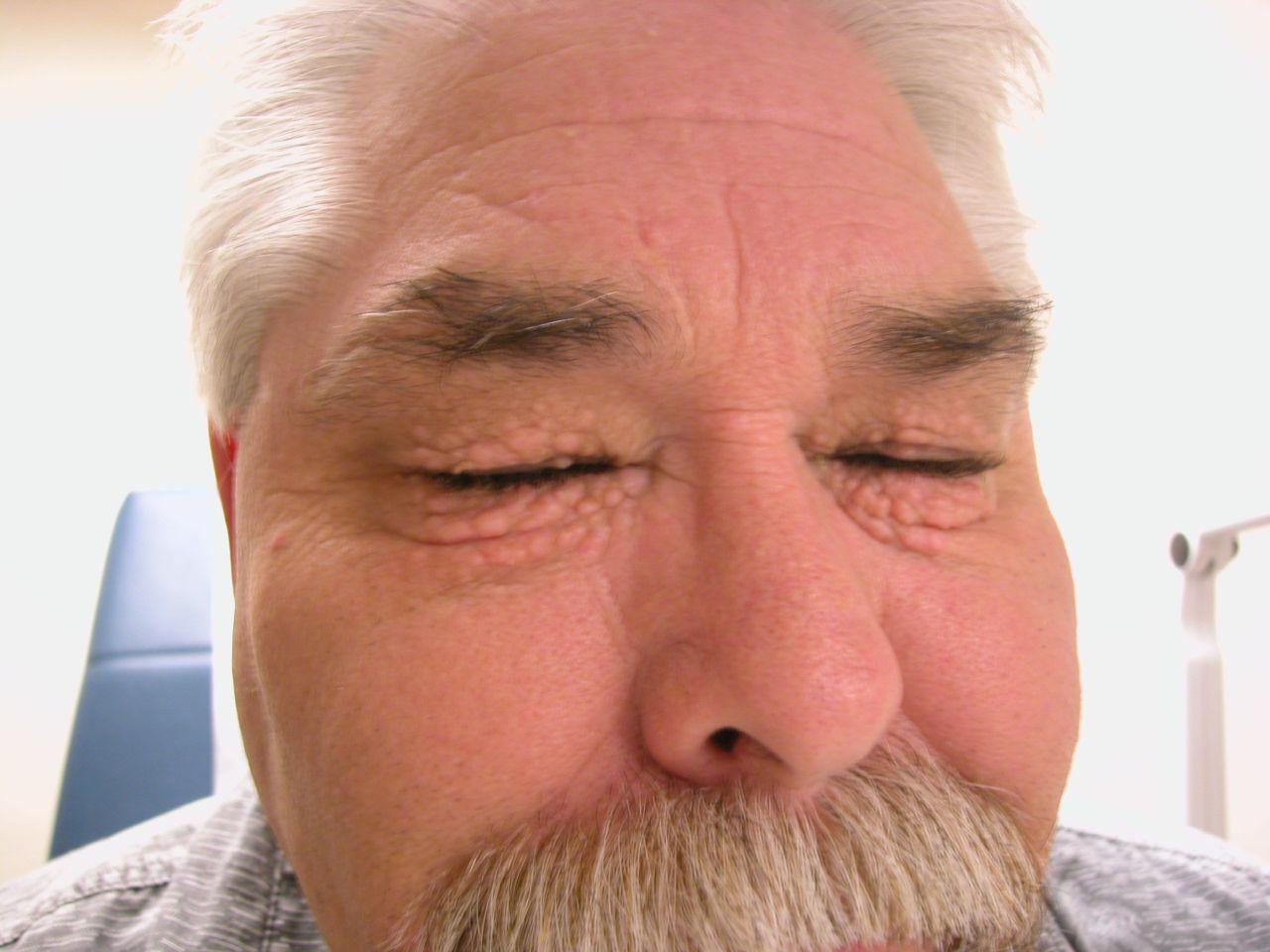 Periorbital syringoma
