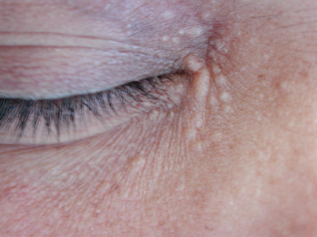 Periorbital Yellow Syringoma