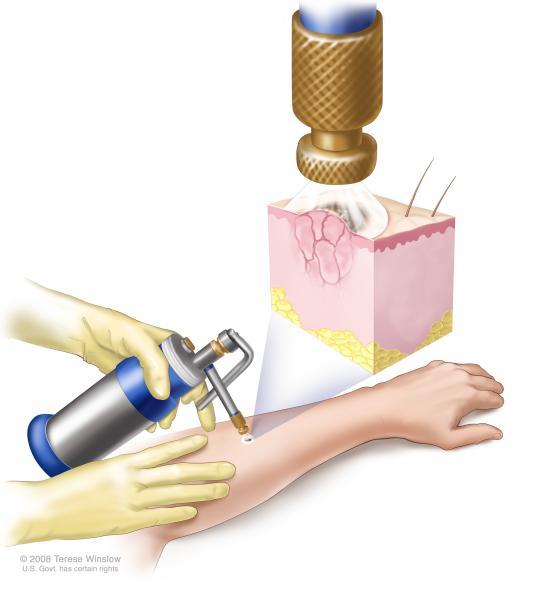 Cryotherapy liquid nitrogen