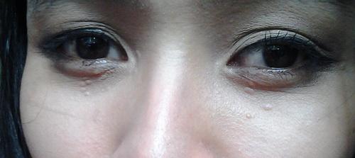 Periorbital Syringomas on Asian Skintype