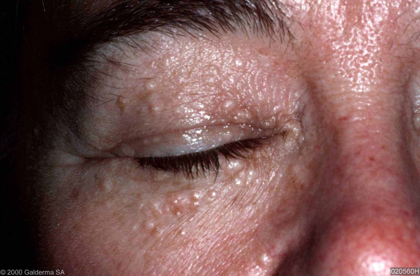 Syringoma on Indian Skin type
